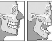 Temperomandibular (TMJ) dislocation