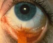 Fluorescein Strip Eye
