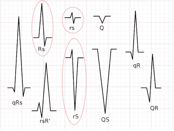 Supraventricular Tachycardia (SVT) With Aberrancy Versus Ventricular Tachycardia (VT)