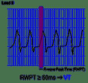 619px-RWPT 2