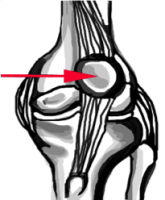 patella-dislocation knee injuries