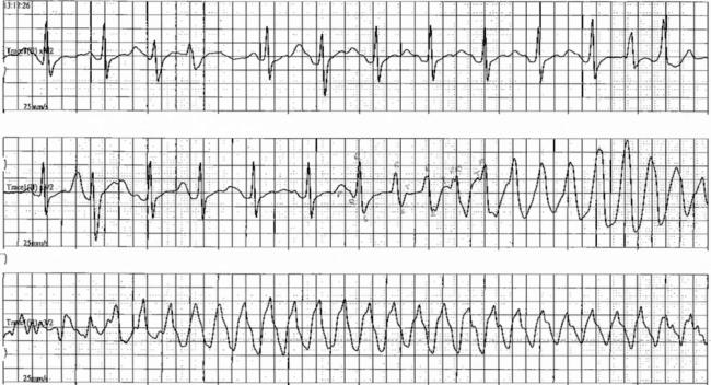 Loperamide Torsades ECG
