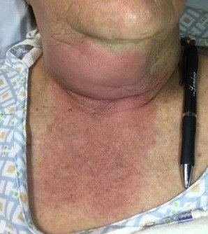 Diagnose On Sight Case Of A Red Swollen Neck