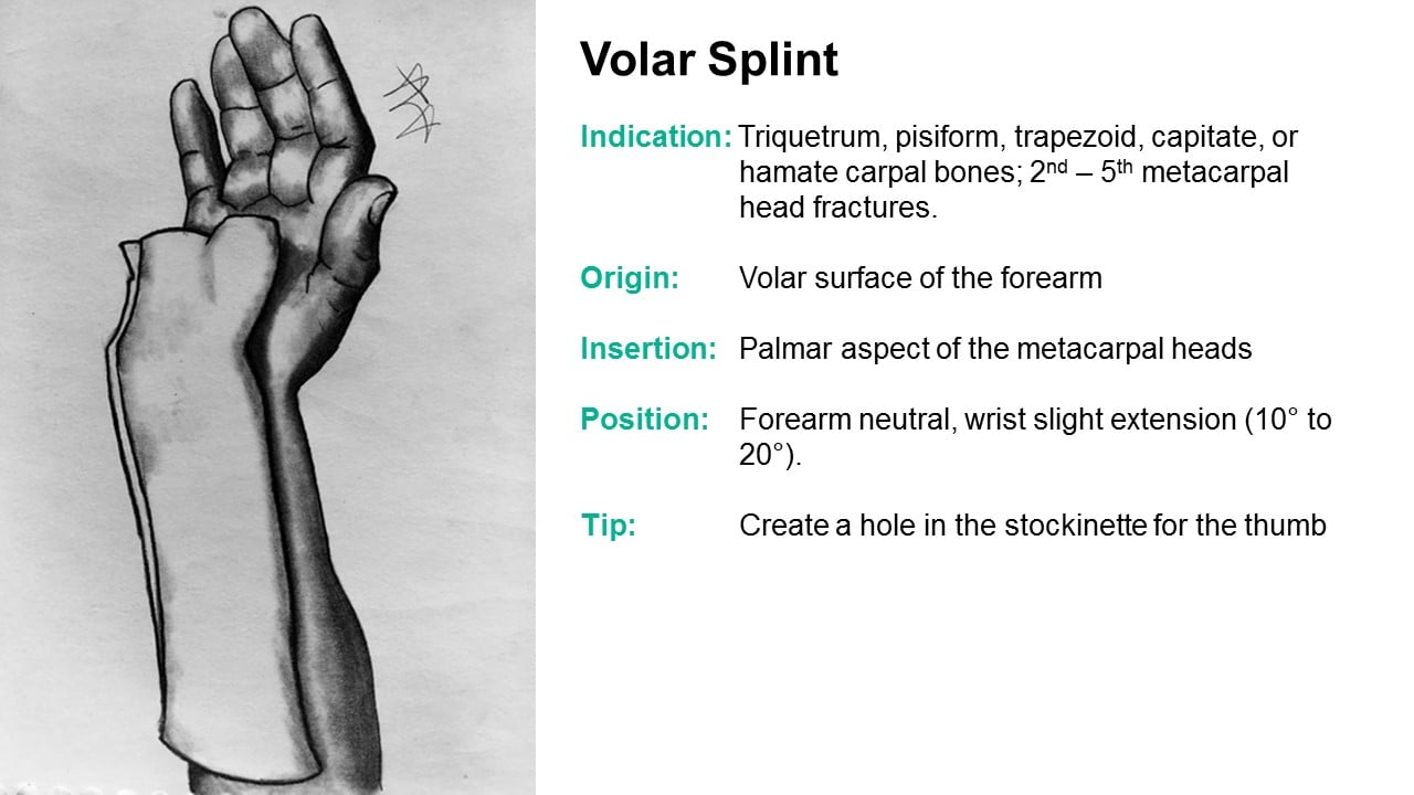 Splinter Series Common Ed Splint Techniques Splint