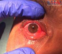 corneal foreign body eye