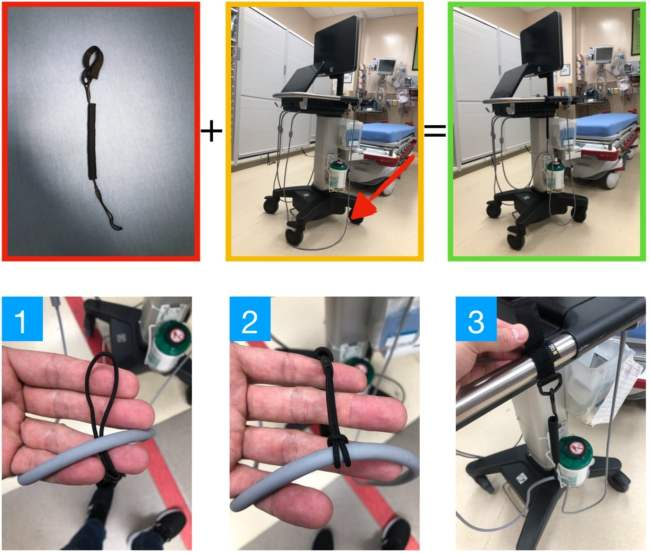 ultrasound probe and elastic lanyard trick