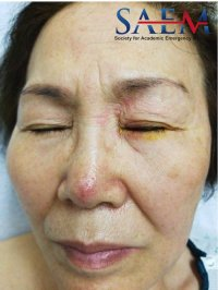 Facial Rash 1, herpes zoster ophthalmicus