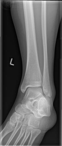 AP ankle radiograph