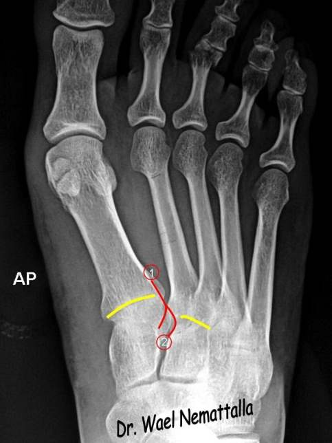 Emrad Radiologic Approach To The Traumatic Foot X Ray
