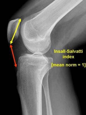 knee radiology