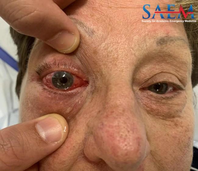 right eye conjunctiva