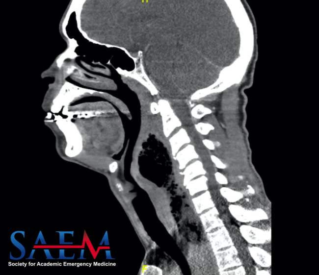 Computed tomography neck