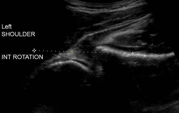 ultrasound shoulder internal rotation