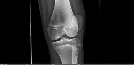 patellar subluxation