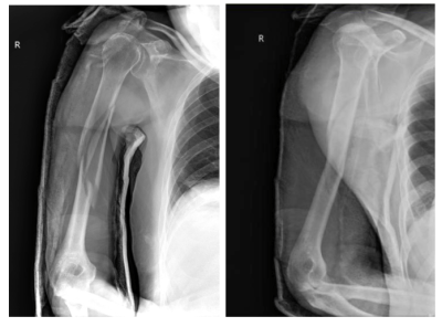 Post-reduction humeral fracture radiograph