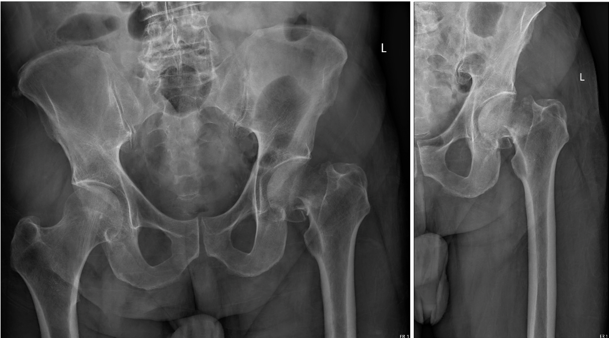 humeral shaft fracture xray