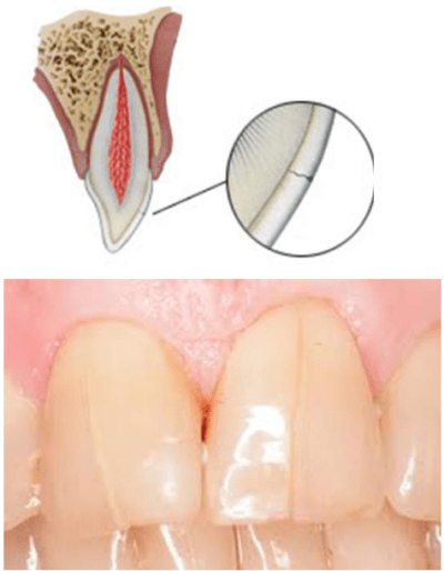 Uncomplicated Dental Fracture