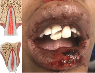 Complicated Dental Fracture