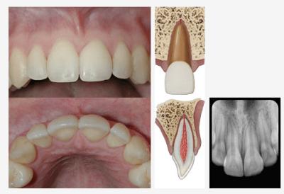 Concussed Tooth