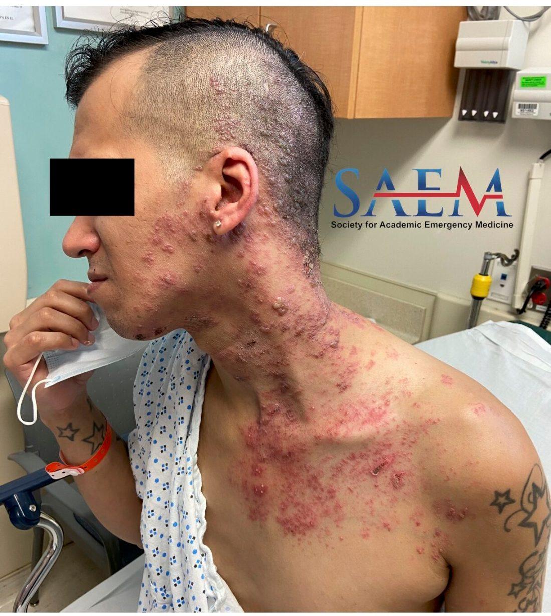 spreading rash
