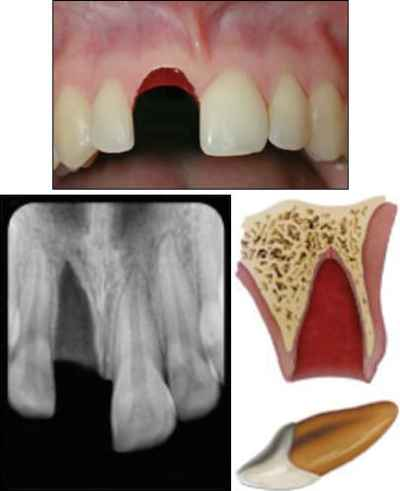 Xray, image, and diagram of an avulsed tooth.