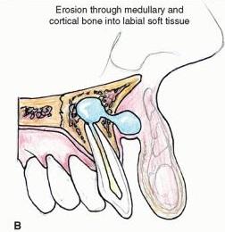 Vestibular Abscess