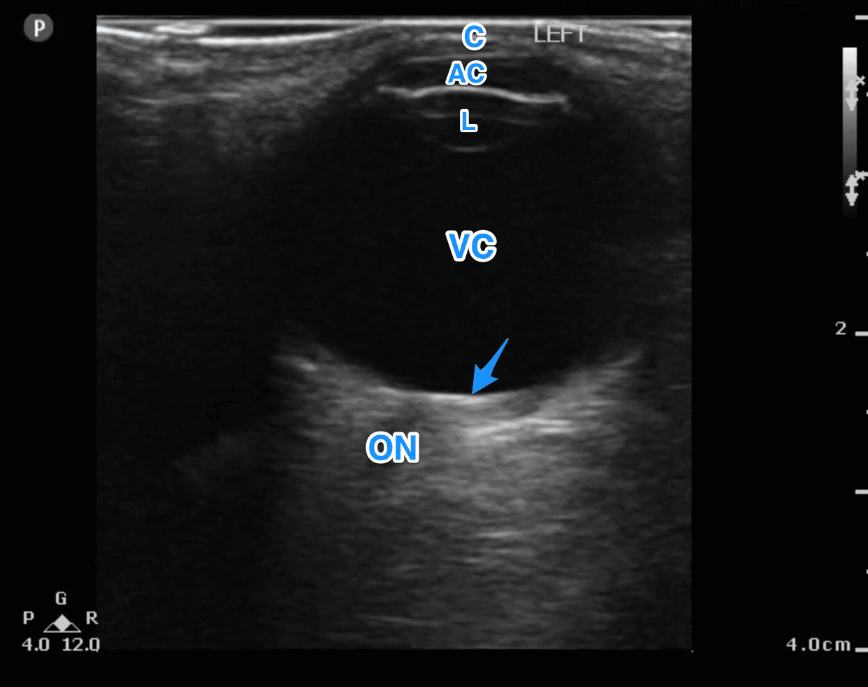 Ultrasound For The Win Case 76m With Right Sided Vision