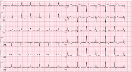 ECG T-wave inversions