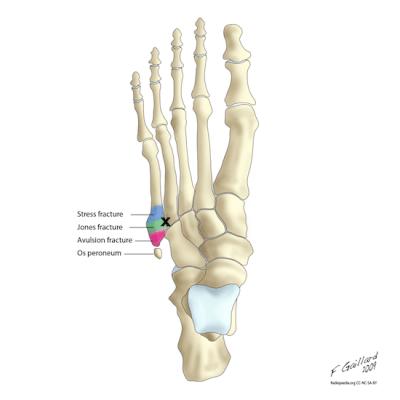 Jones Foot anatomy