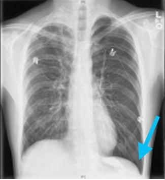 Pneumothorax-Deep-Sulcus-Arrow