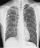Pneumothorax-Deep-Sulcus