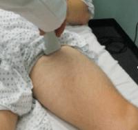 ultrasound dvt