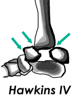 Ankle and Hindfoot Fractures Talar Neck Hawkins Classification IV