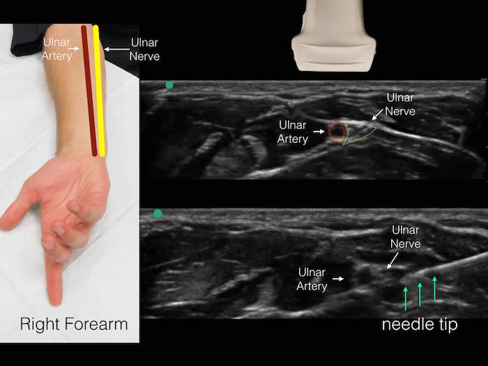 Ultrasound Ulnar Nerve 1