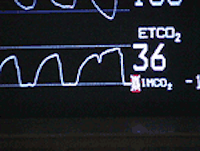 Capnography in CPR