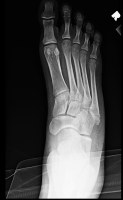 fifth metatarsal fracture.jpg