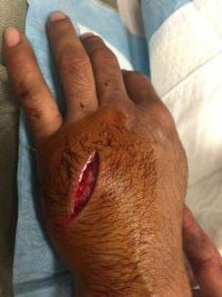 hand laceration -225x300