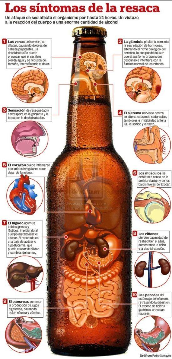 Resaca: la consecuencia de la bebida en exceso