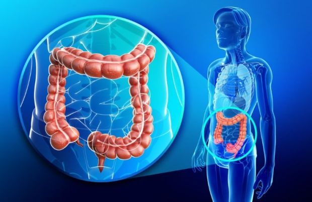 Cáncer de colon, intestino grueso