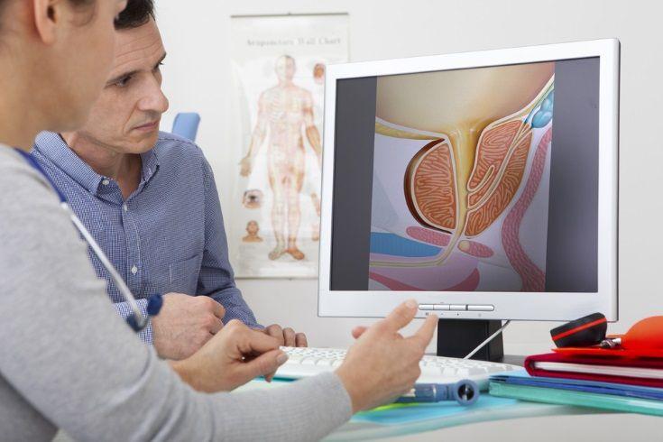 Medidas para prevenir el cáncer de próstata