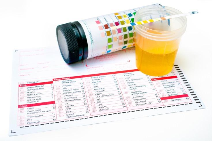 con un analisis de sangre se detecta el vih