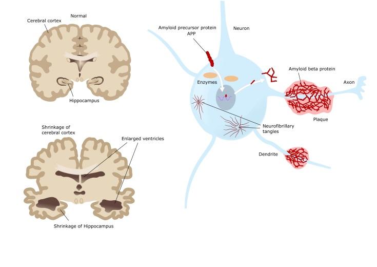 Tipos de demencias según la causa