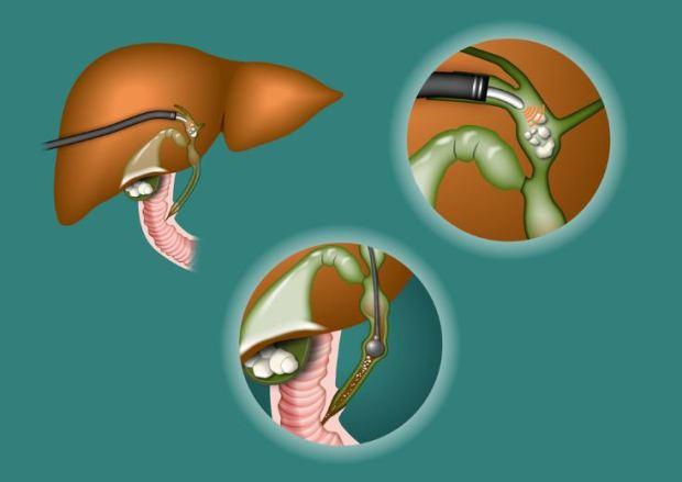 Litiasis biliar: causas, síntomas, tratamiento y dieta