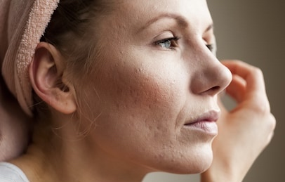 remedios para la piel rosácea