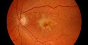 Imagen retiniana con signos de degeneración macular