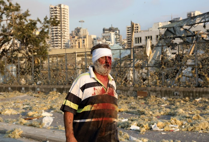 A wounded man stands near the scene of the explosion. [Anwar Amro/AFP]