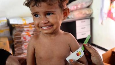 'Killing a generation': Five million Yemeni children face famine