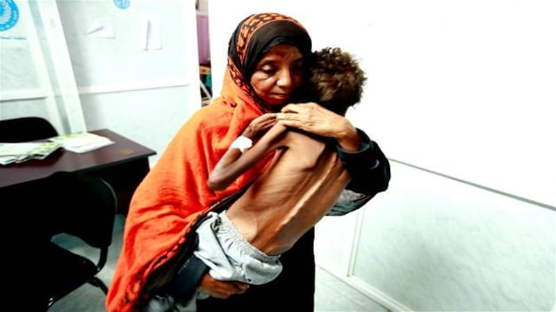 Thousands of Yemeni children malnourished