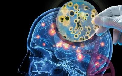 Los sulfitos y el daño que pueden causar en nuestro cuerpo.