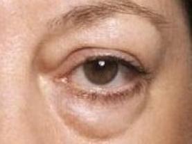 wallen ogen